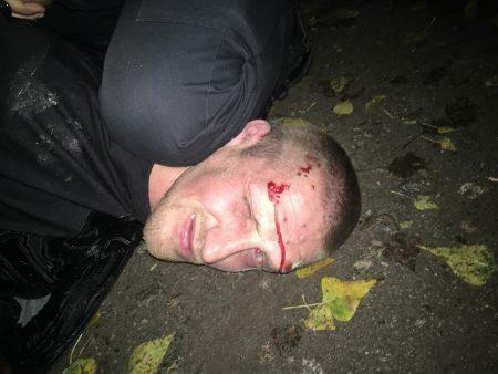 Арештували-відпустили-арештували: у Кропивницькому знову змінили запобіжний захід нападнику на замкомбата патрульних