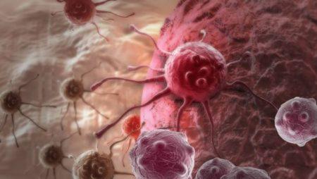 Кропивничанка потребує фінансової допомоги на боротьбу з раком
