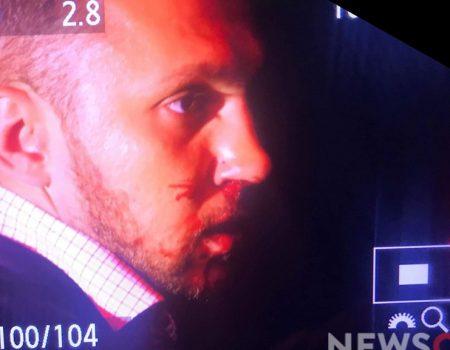 Нардепу від Кіровоградщини після телеефіру зламав носа колишній колега по фракції. ФОТО, ВІДЕО