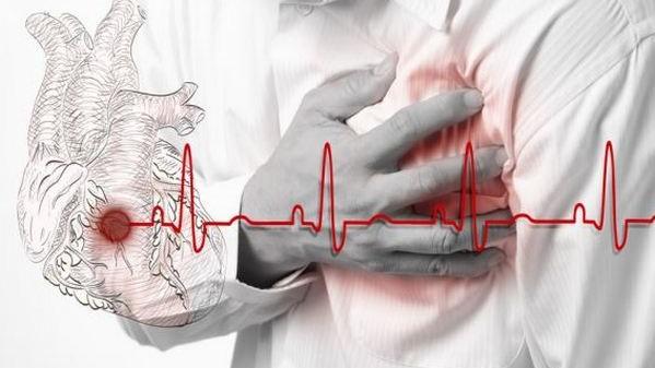 Кіровоградщина отримала 64 стенти для безкоштовного стентування при інфаркті