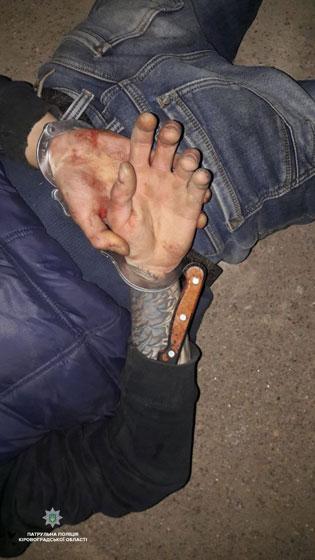 Без Купюр Патрульні надали допомогу пораненому кухонним ножем та затримали нападника. ФОТО Кримінал  Патрульна поліція ножове поранення Кропивницький