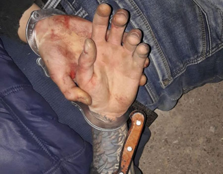 Патрульні надали допомогу пораненому кухонним ножем та затримали нападника. ФОТО