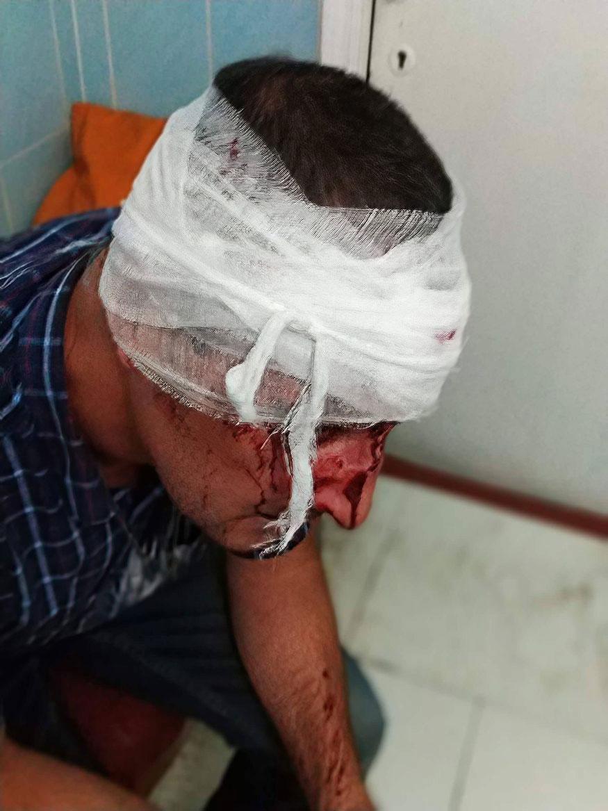 «Бив ногами, переважно в голову», - після операції потерпілий розповів, як і за що його побив працівник СБУ - 1 - Кримінал - Без Купюр