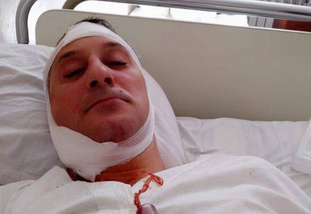 «Бив ногами, переважно в голову», – після операції потерпілий розповів, як і за що його побив працівник СБУ