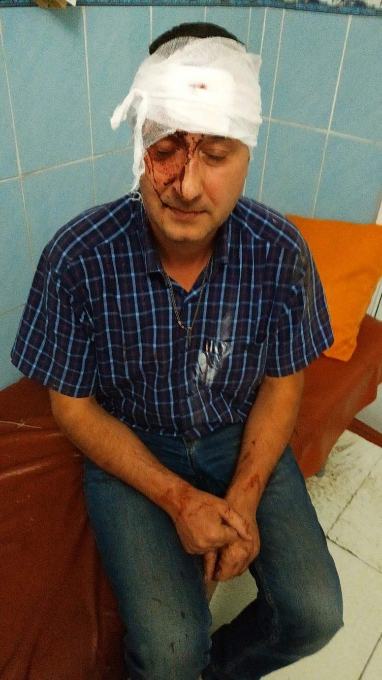 «Бив ногами, переважно в голову», - після операції потерпілий розповів, як і за що його побив працівник СБУ - 2 - Кримінал - Без Купюр