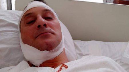 Військова прокуратура перекваліфікувала статтю в справі про побиття працівником СБУ жителя Гайворона