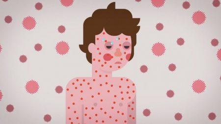 На Кіровоградщині ще 15 випадків захворювання на кір, з них 8 – у дітей
