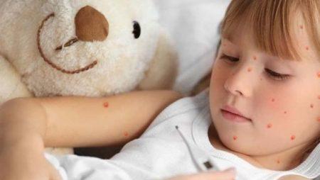 На Кіровоградщині ще 10 людей захворіли на кір, із них – 5 діти