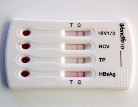 У Кропивницькому проведуть акцію, на якій охочі зможуть пройти тест на гепатит С