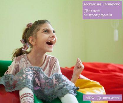 У Кропивницькому стартує благодійний челендж у підтримку дівчинки з мікроцефалією