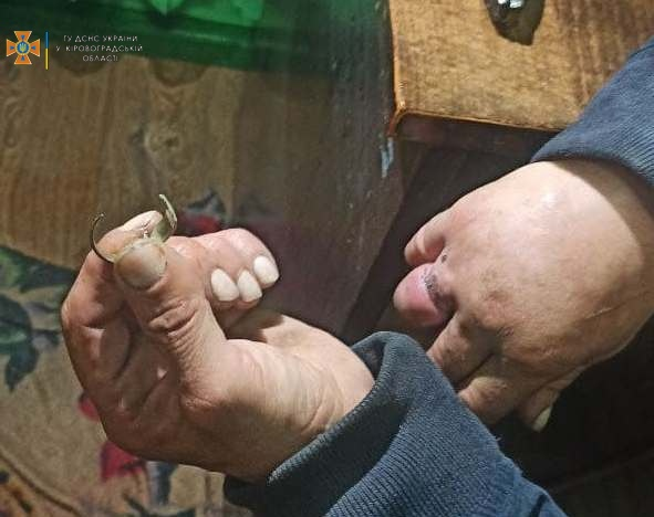 Без Купюр На Кіровоградщині лікар викликав рятувальників, щоб врятувати палець пацієнта. ФОТО Життя  новини Кіровоградщина ДСНС 2021 Вересень