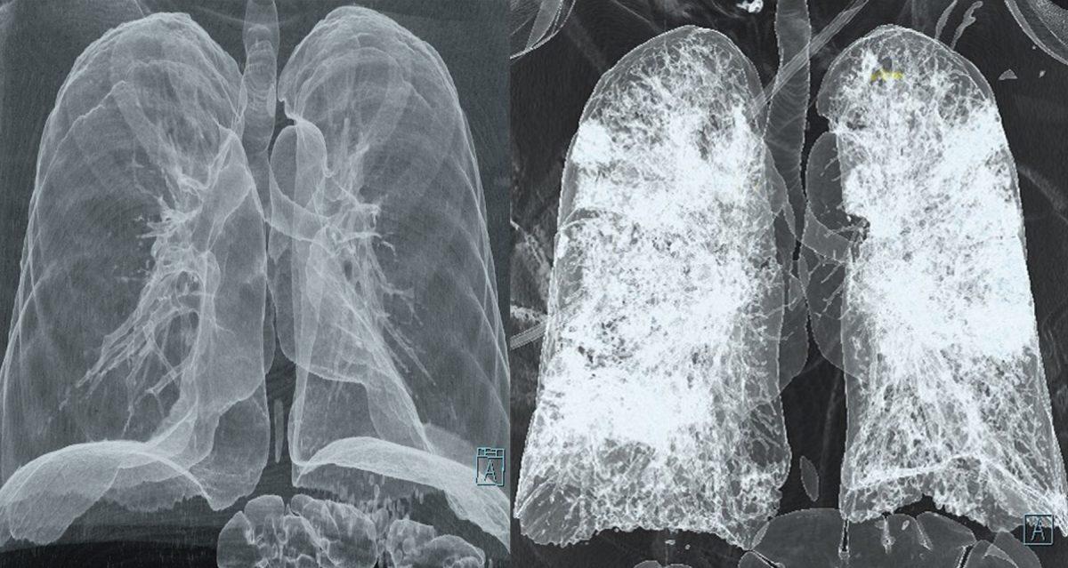 Без Купюр Чи потрібно робити комп'ютерну томографію при підозрі на Covid-19? Здоров'я  новини МОЗ КТ Кропивницький Коронавірус в Україні Кіровоградщина 2021 Жовтень 2021 Вересень